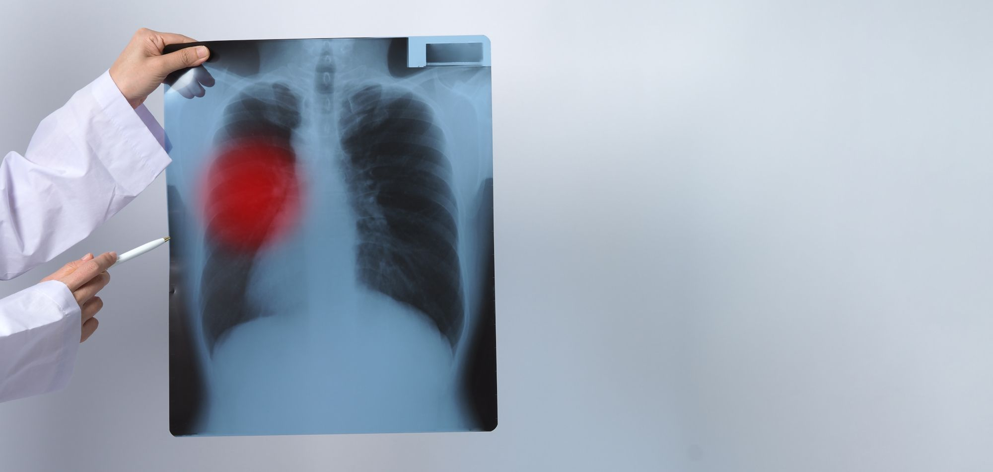 Keuhkojen röntgenkuva, jolla tuberkuloosikin todetaan